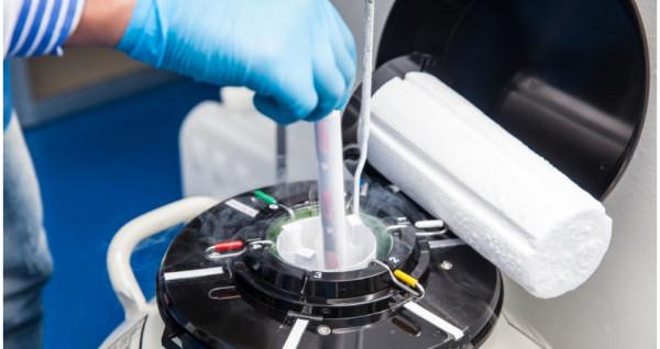 Кріоконсервація яйникової тканини #1
